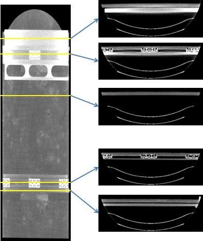 Vorwärtsprojektion der Patientenauflage (Virtuelle Radiographie)